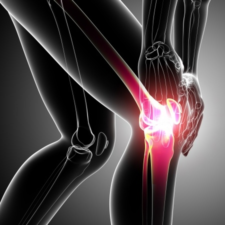 Knee Pain Solutions